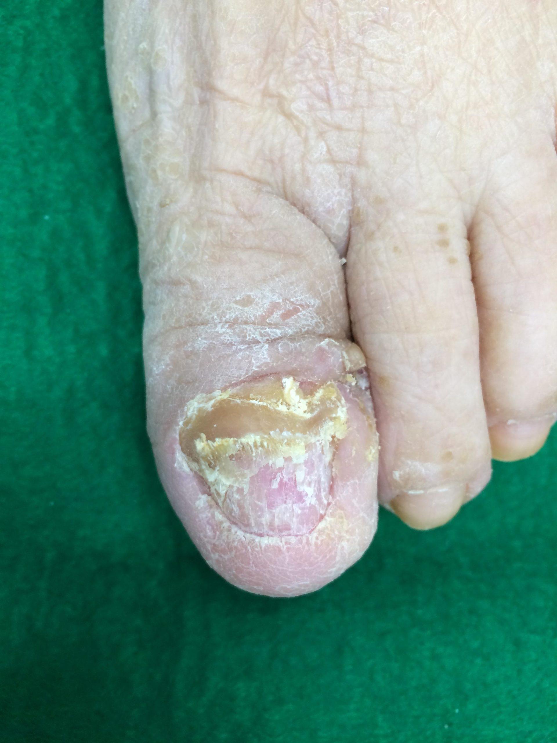 爪白癬(つめのみずむし)