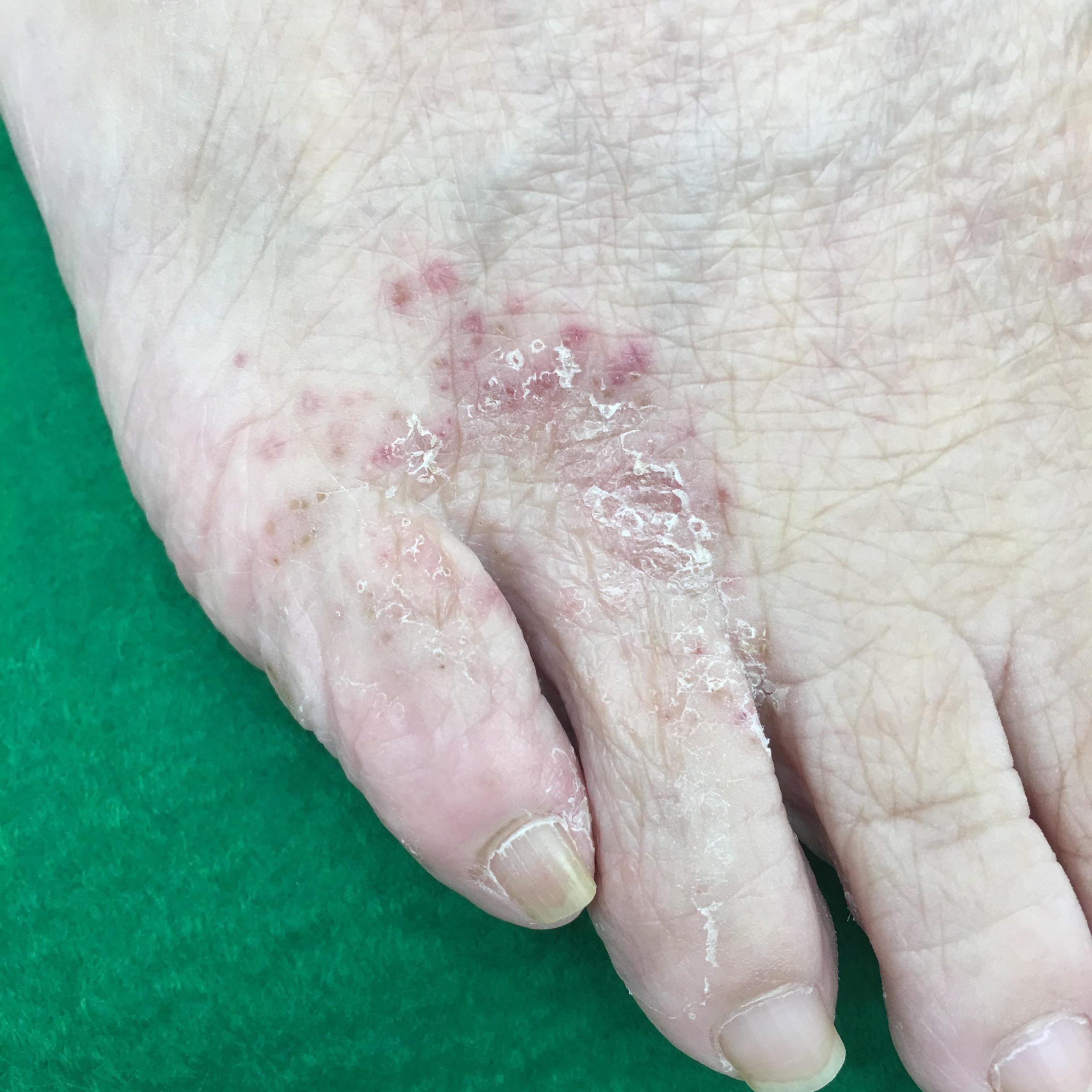 足の第4〜5指の付近は水虫の好発部位です。