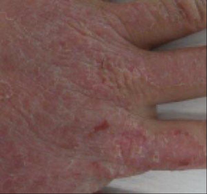 手の甲の頑固な手湿疹