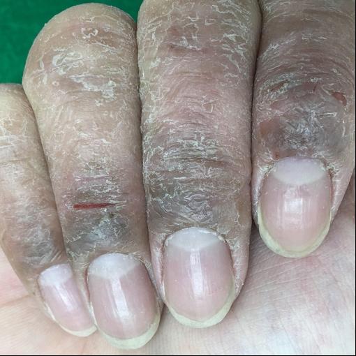 亀裂をともなうひどい手湿疹