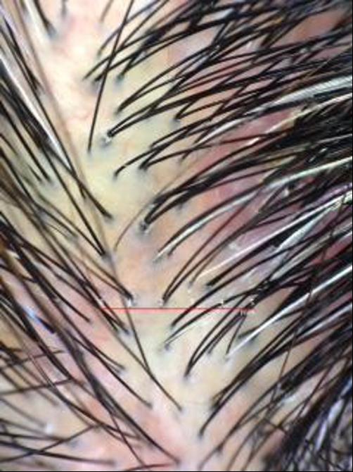 頭皮の湿疹