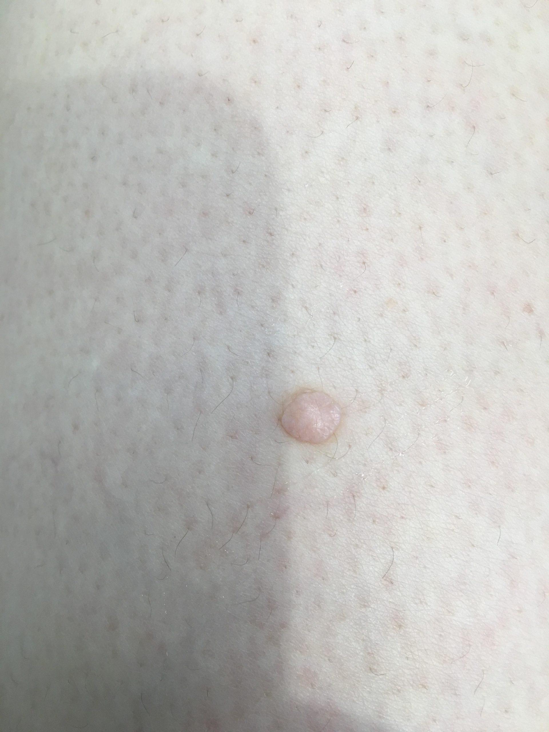 ふとももの乳頭腫