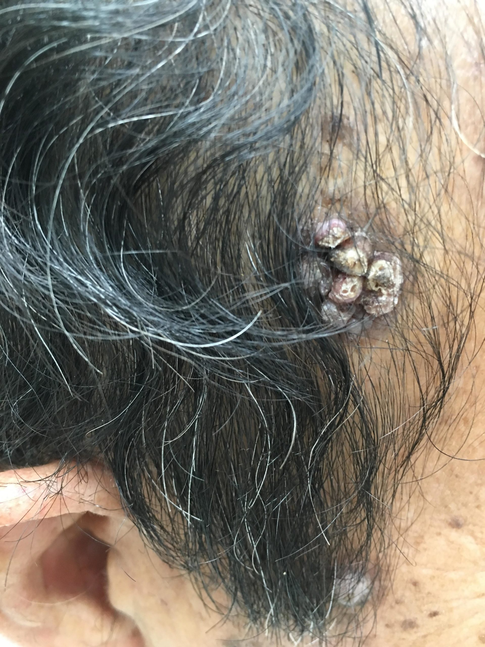 右側頭部の腫瘍 良性なので切らないで治療してみます