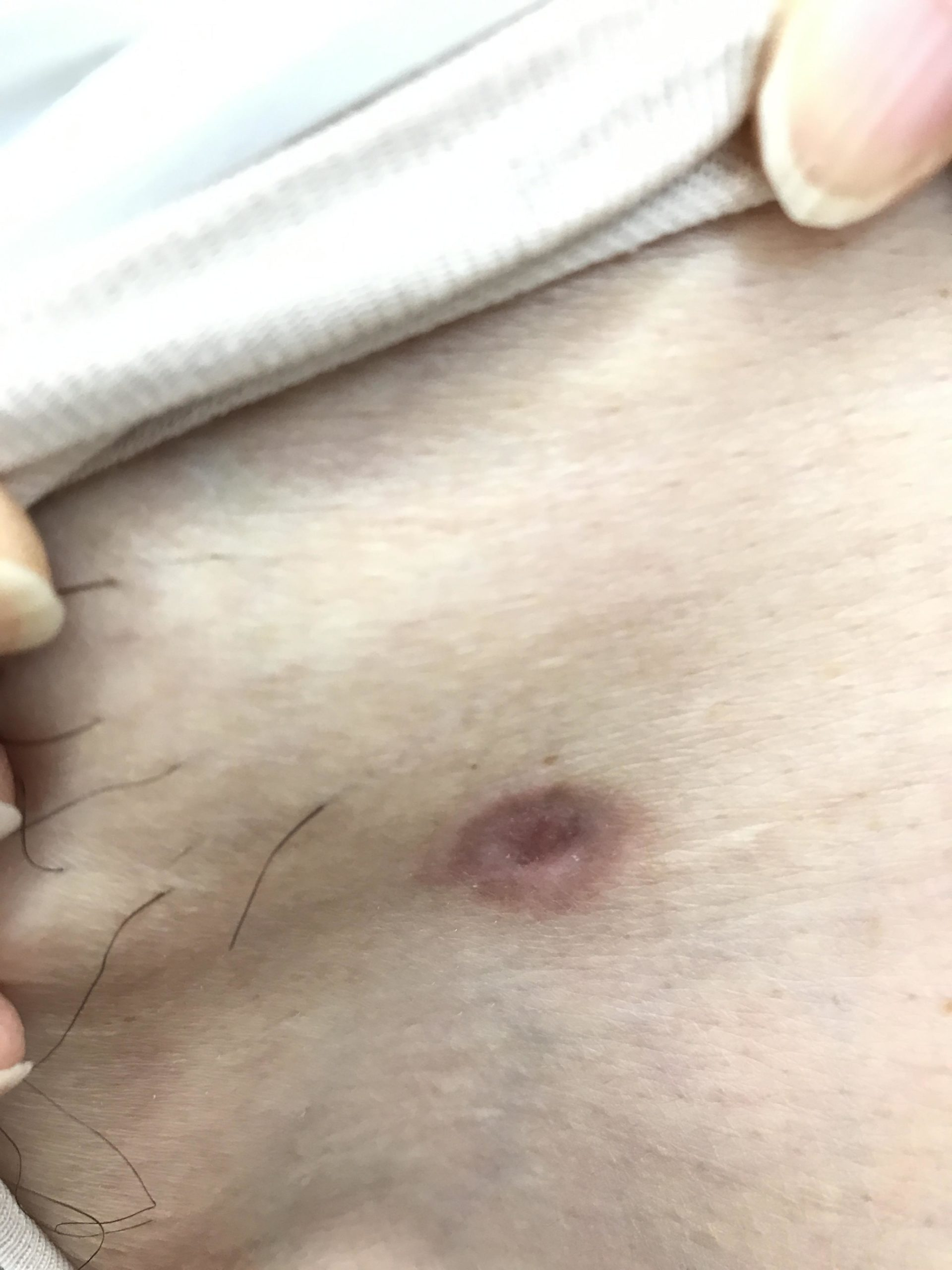 左そけい部(またの付け根)の腫瘍