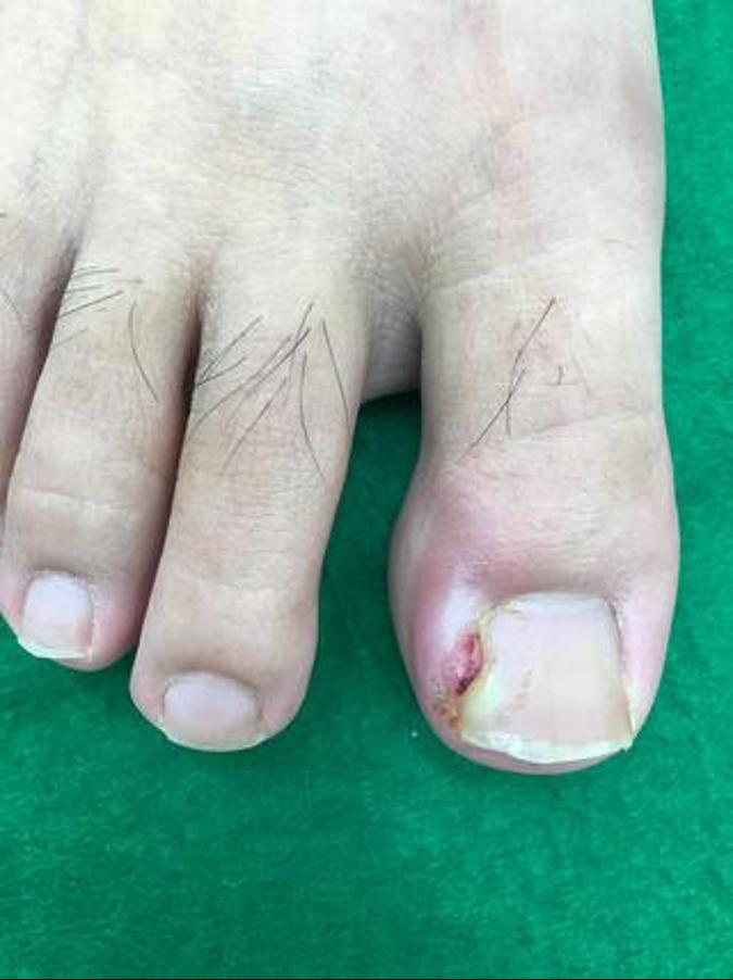 足の親指の不良肉芽