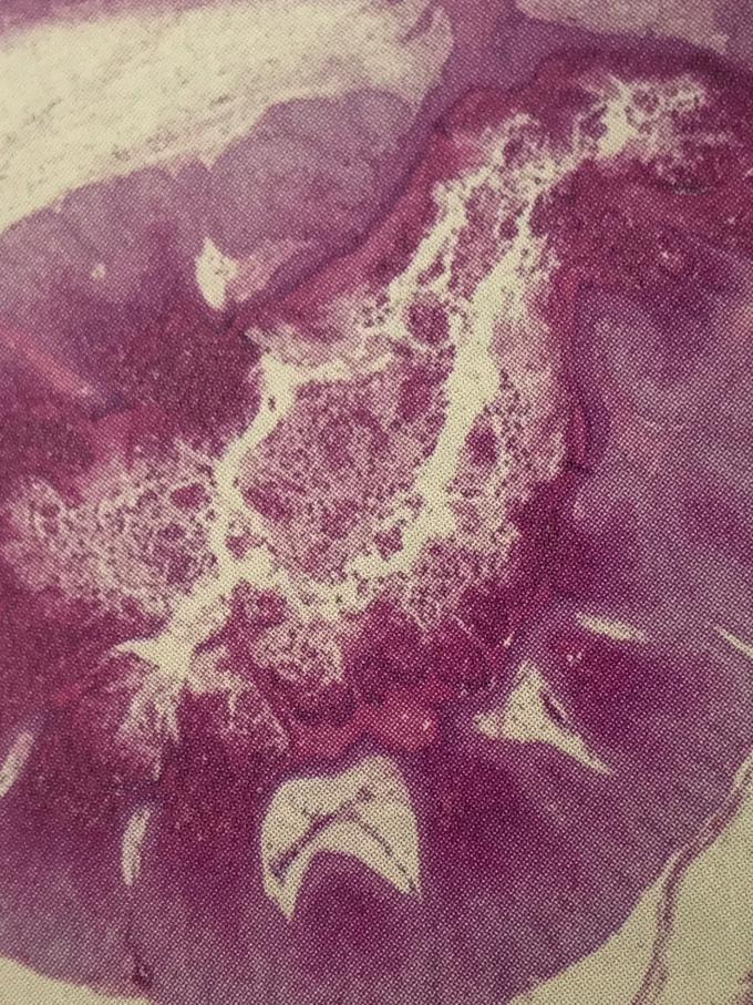 水イボ(Molluscum body)の顕微鏡写真 ヘマトキシリン・エオジン染色 弱拡大