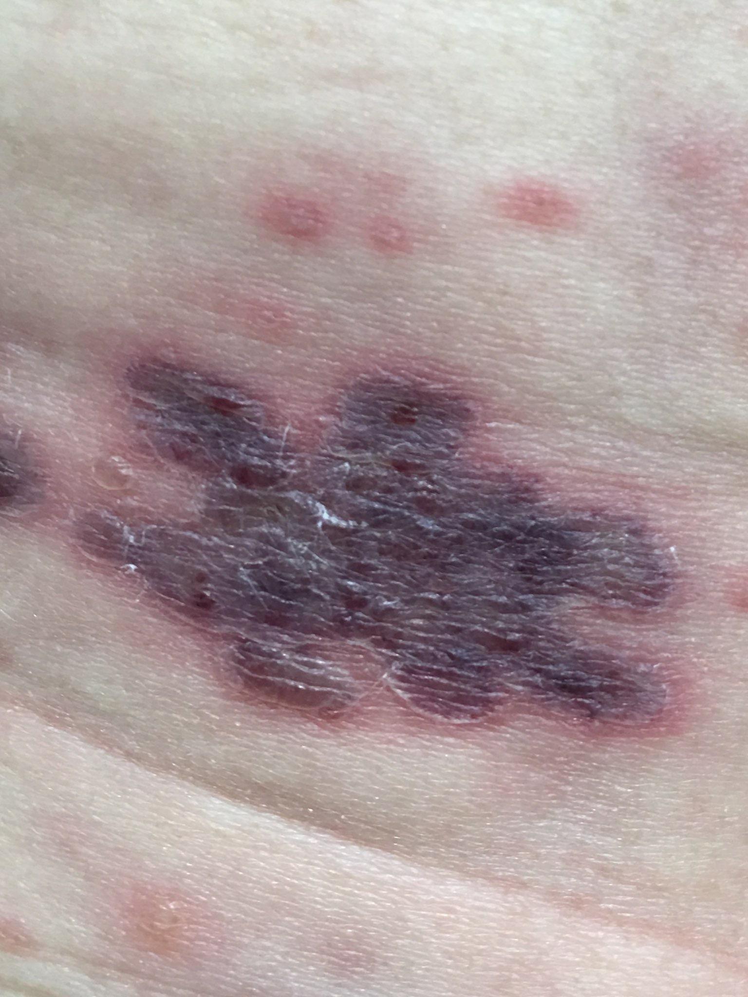 わきばらのひどい帯状疱疹(たいじょうほうしん)