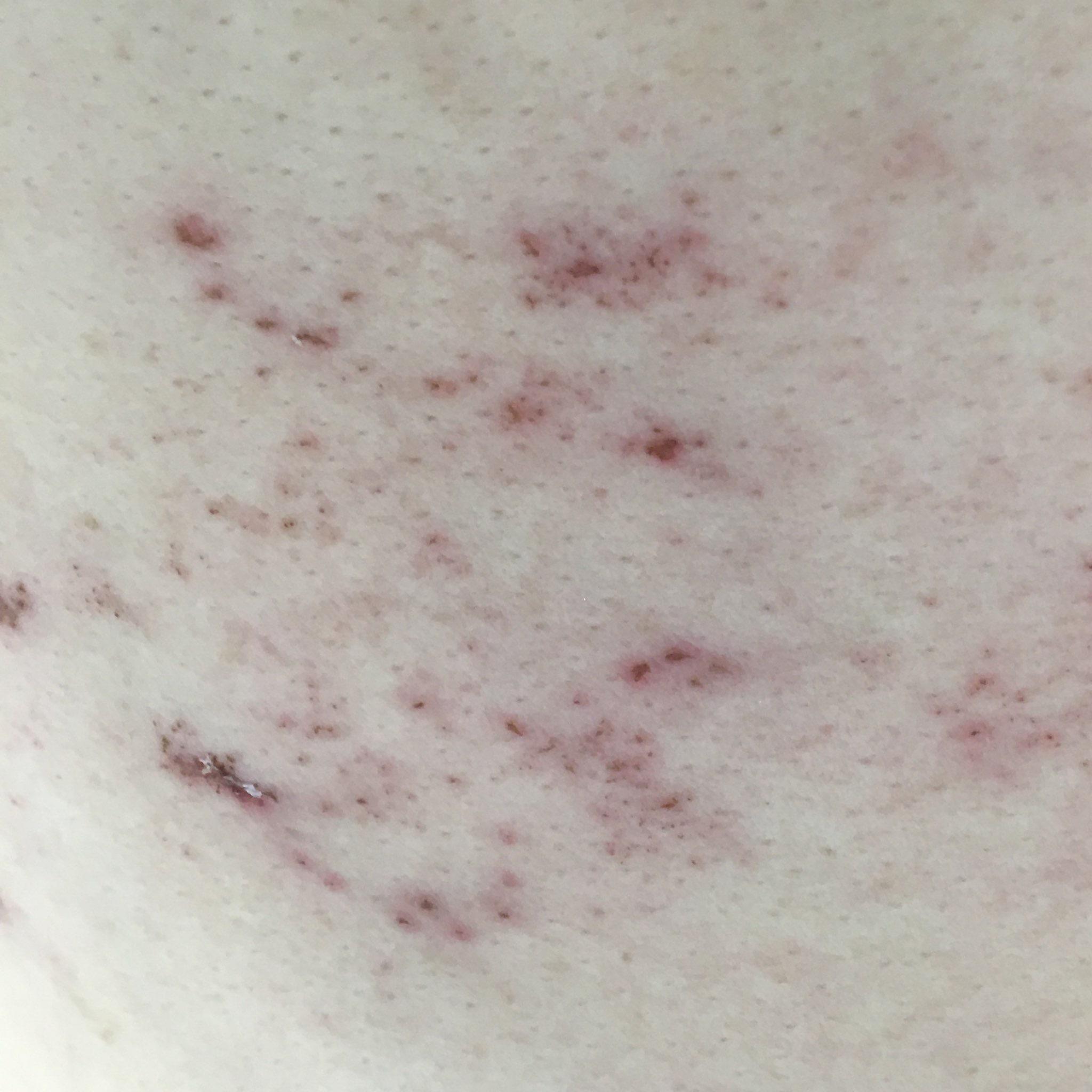 わきばらの帯状疱疹