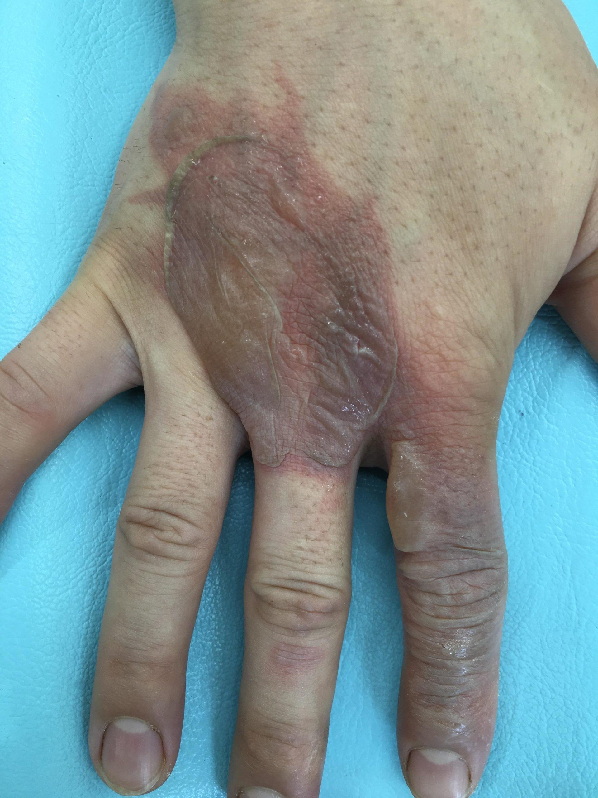 手の甲のやけどの水疱跡
