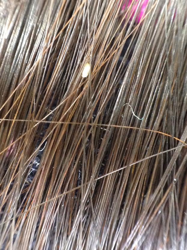 側頭部のシラミ卵(女児10歳)